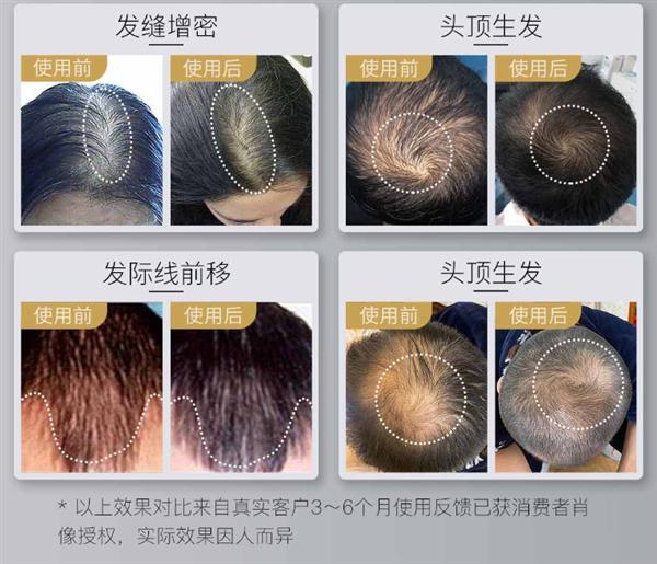 Xiaomi crowdfunds the COSBEAUTY LLLT laser hair growth cap 3