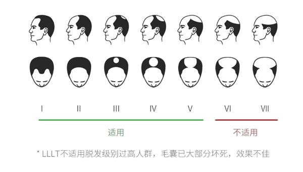 Xiaomi crowdfunds the COSBEAUTY LLLT laser hair growth cap 4